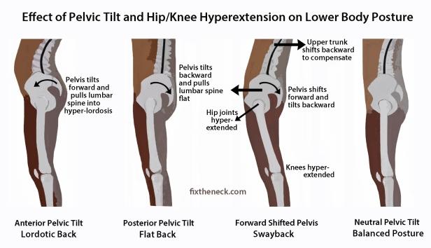 Hip-posture